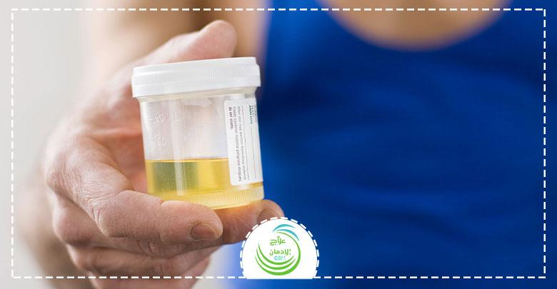 اسرع طريقة لتنظيف البول من المخدرات